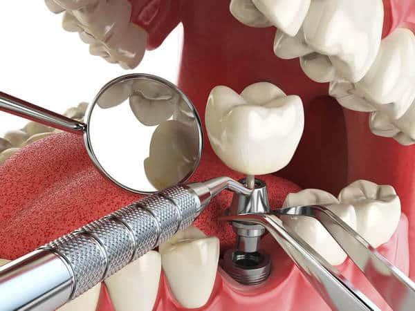 Имплантация зубов в Москве цены