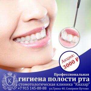 Профессиональная гигиена полости рта - 3000 руб! До 30 июня