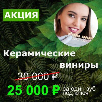 Керамические виниры - 25000 руб! До 31 октября